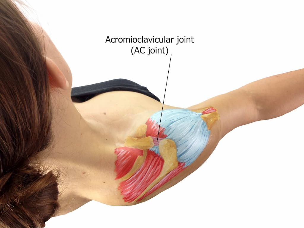 Rotator Cuff Tear Treatment