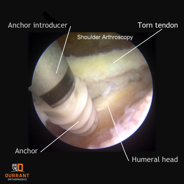 rotator cuff injuries with anchor being inserted